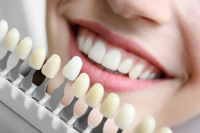Farbstufen zur Zahnaufhellung für perfekte Bleaching-Ergebnisse